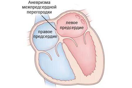 Аневризма мпп
